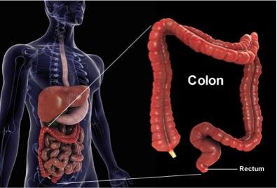 colon 1